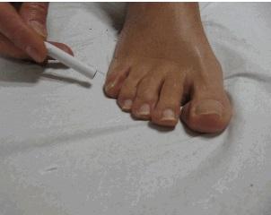 feto-in-posizione-podalica