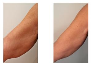 fili-riassorbibili-braccia