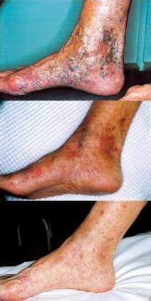 TRAP - Fleboterapia vene varicose