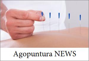 agopuntura rimini
