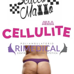 Cellutrix - il trattamento più efficace contro la Cellulite
