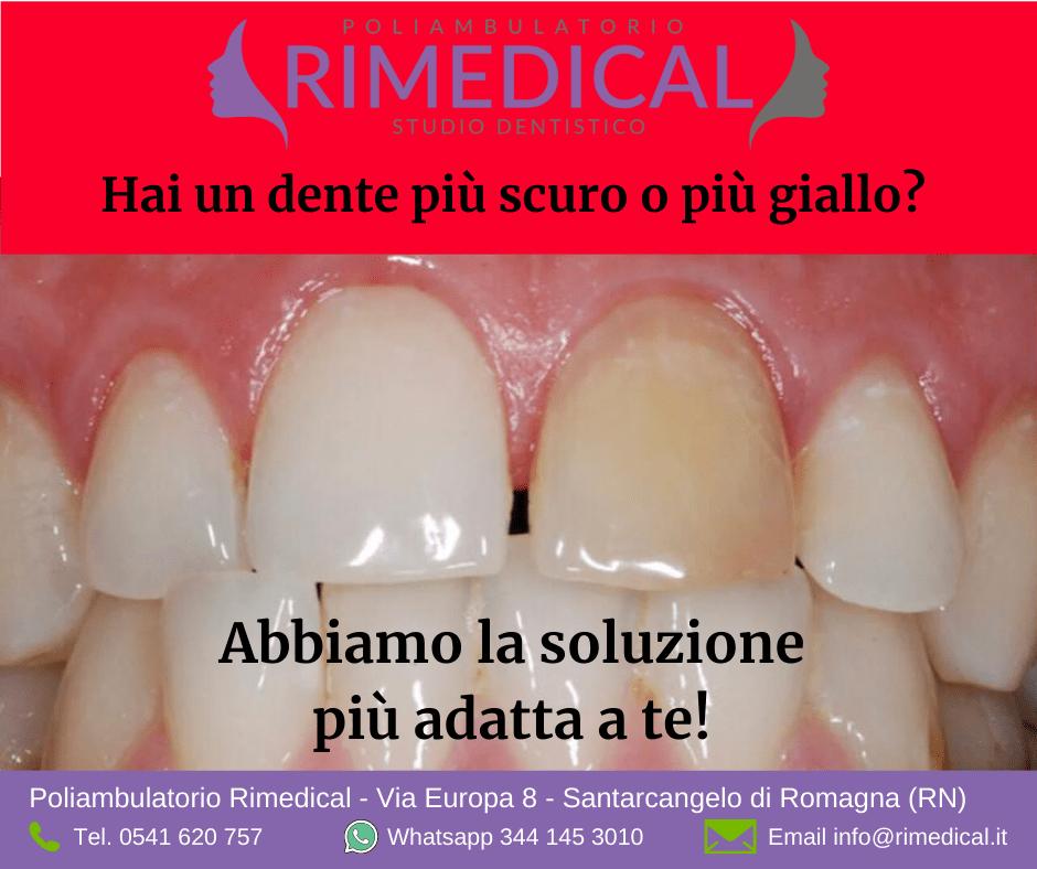 Discromie dentali? Abbiamo la soluzione più adatta a te